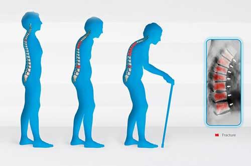 Bệnh khớp dẫn đến liệt và tàn tật